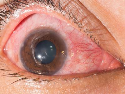 Bolesti prednjeg segmenta oka